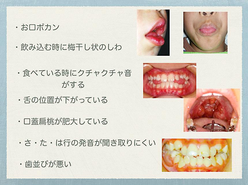 「口腔機能発達不全症」の代表的な症状