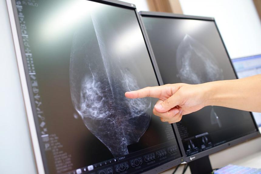 乳がん検診・母乳相談の湘南台ブレストクリニックの3Dマンモグラフィ