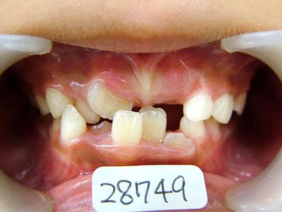 小児歯科育成矯正のプレート矯正前