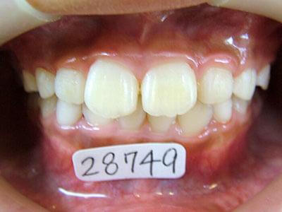 小児歯科育成矯正のプレート矯正後